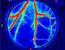 Laser Speckle Contrast Analysis