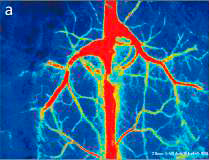 Laser Speckle Perfusion Imager